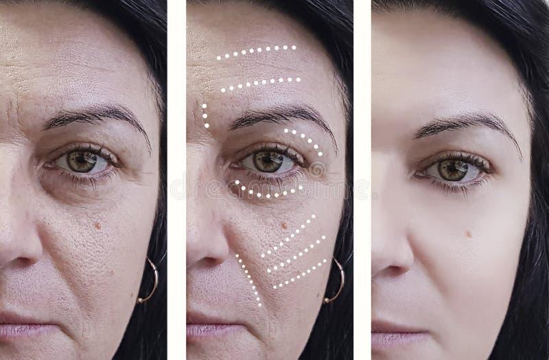 Kobiet zmarszczenia przed i po chirurga odmładzania traktowaniami fotografia stock