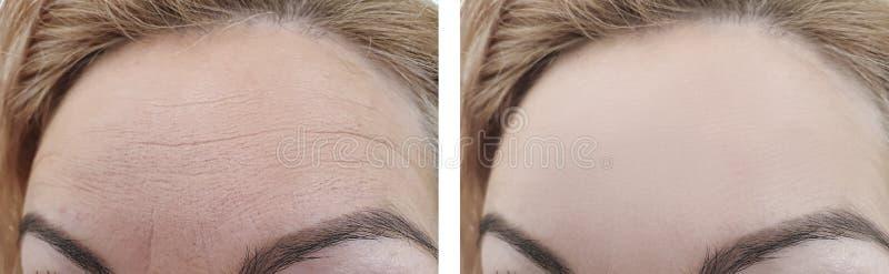 Kobiet zmarszczenia przed i po czoła traktowania biorevitalization zdjęcia stock