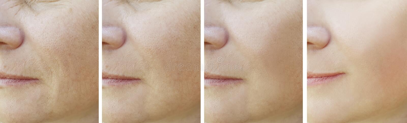 Kobiet zmarszczenia przed i po odzyskiwanie kolażu procedurami zdjęcia royalty free