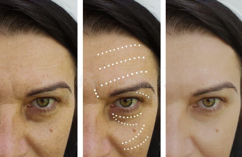 Kobiet zmarszczenia przed i po rezultatami zdjęcie royalty free