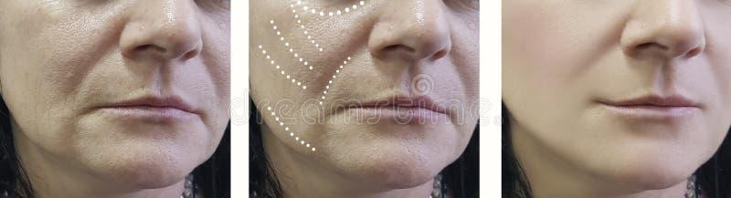 Kobiet zmarszczenia przed i po traktowanie chirurga odmładzania traktowaniami fotografia stock