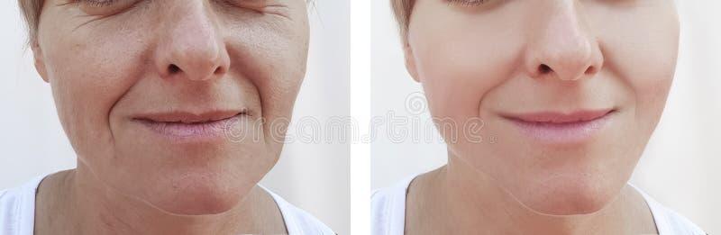 Kobiet zmarszczenia stawiają czoło usunięcie różnicy pacjenta przed i po traktowanie dermatologią fotografia royalty free