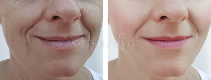 Kobiet zmarszczenia stawiają czoło usunięcie różnicy pacjenta przed i po traktowanie kosmetologią zdjęcia royalty free