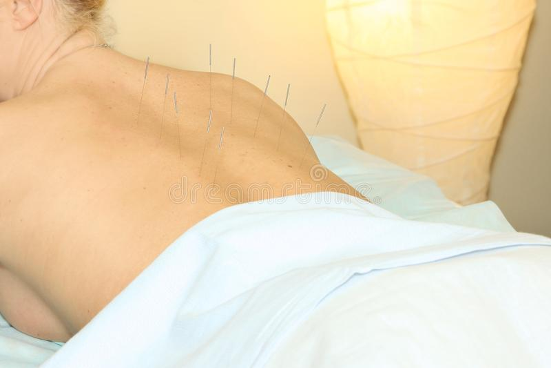 Kobieta akceptuje procedury akupunktury plecy obrazy stock