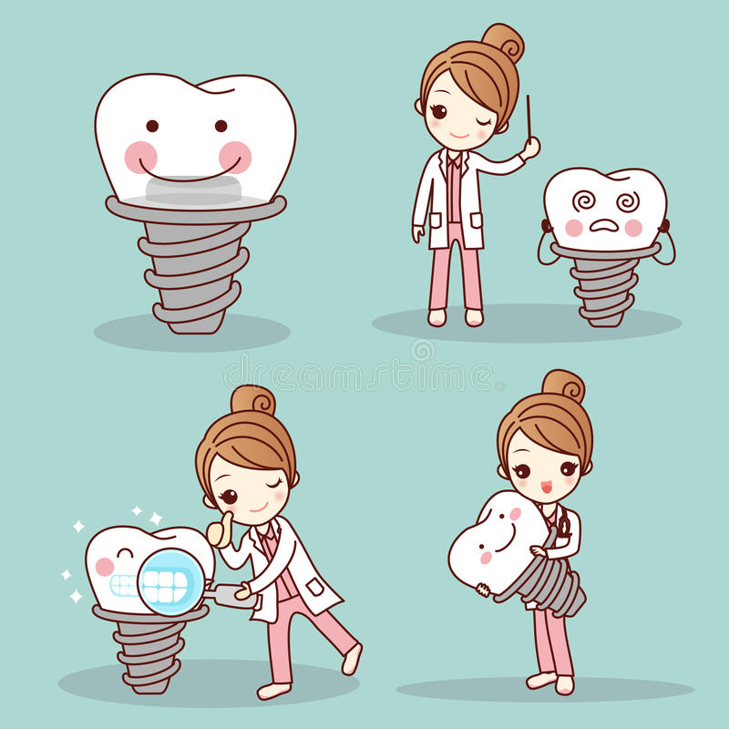 Kobieta dentysta z zębu wszczepem ilustracji