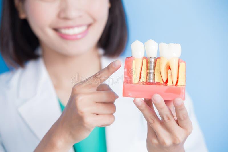Kobieta dentysty wp8lywy wszczepu ząb zdjęcie stock