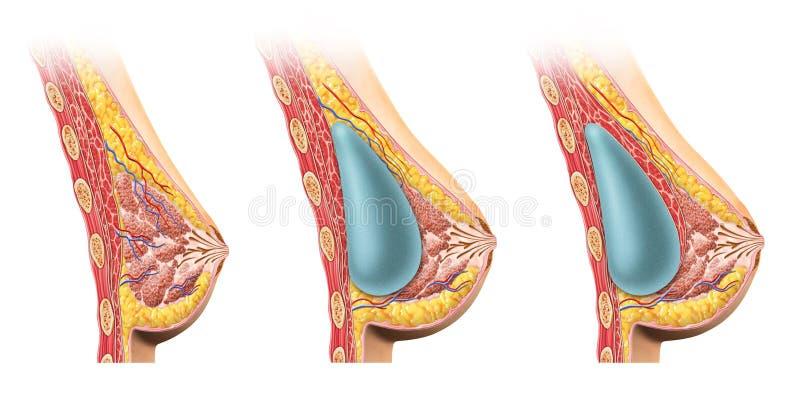Kobieta implanta piersi przekrój poprzeczny. ilustracji
