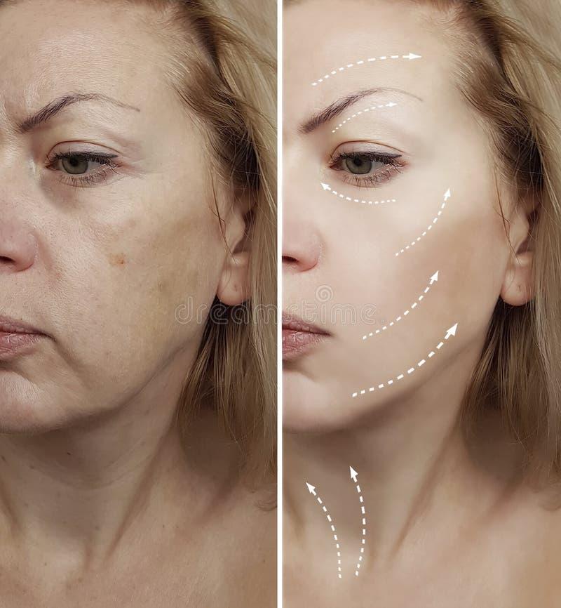 Kobieta marszczy przedtem po terapii zdrowej kosmetologii podnośnych procedur cierpliwych obrazy royalty free