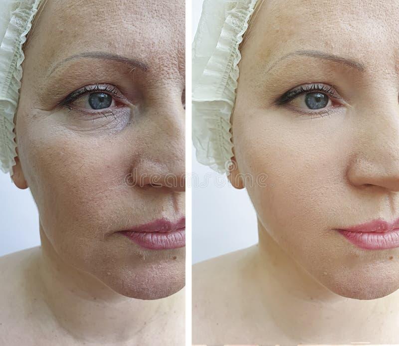 Kobieta marszczy terapii kosmetologii odmładzania pacjenta przed i po traktowaniem obrazy royalty free