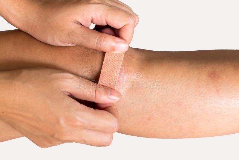 Kobieta pielęgnuje zdradzonego kolano fotografia royalty free