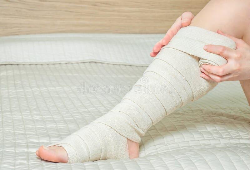 Kobieta stosuje elastycznego uciskowego bandaż jako zakrzepicy zapobieganie po żylakowatej operaci fotografia stock