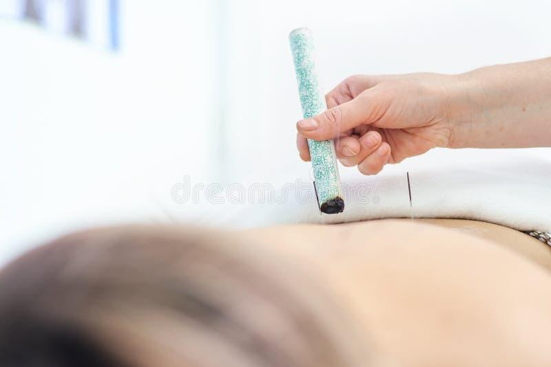 Kobieta taktuje z akupunktury i moxibustion traktowaniami obraz royalty free