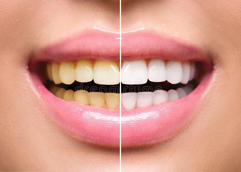 Kobieta zęby przed i po dobieraniem