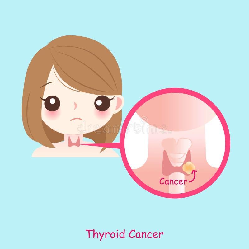 Kobieta z rakiem tarczycy royalty ilustracja