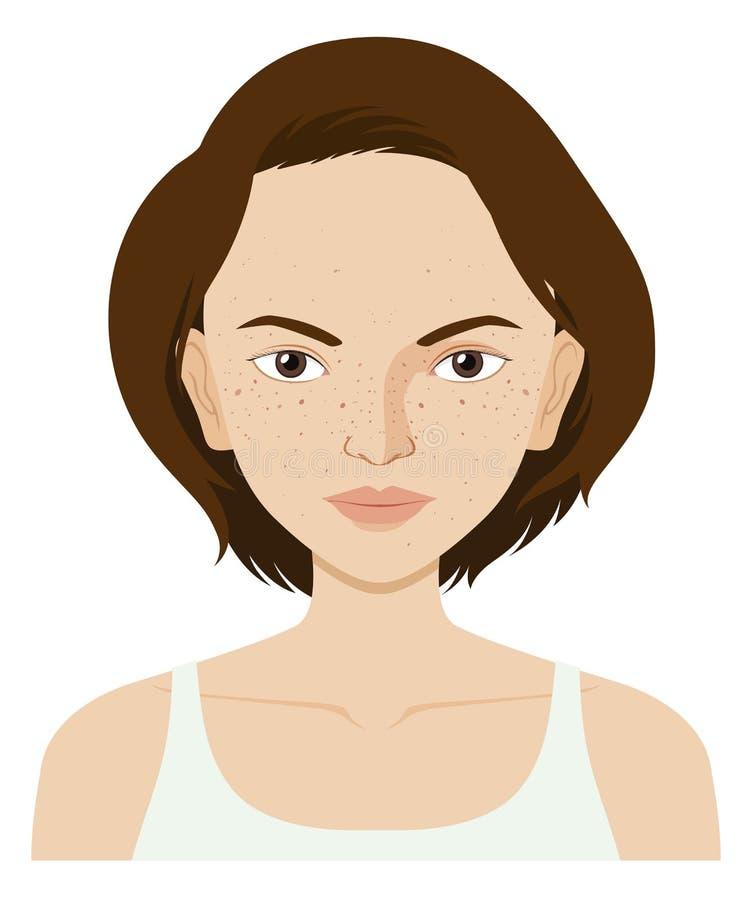 Kobieta z skóra problemem royalty ilustracja