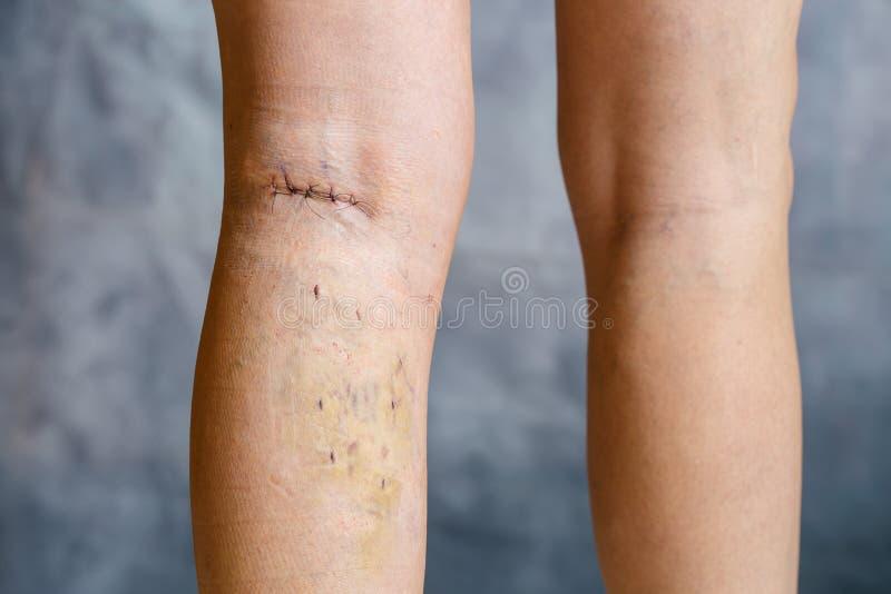 Kobiety noga po phlebectomy zdjęcie royalty free