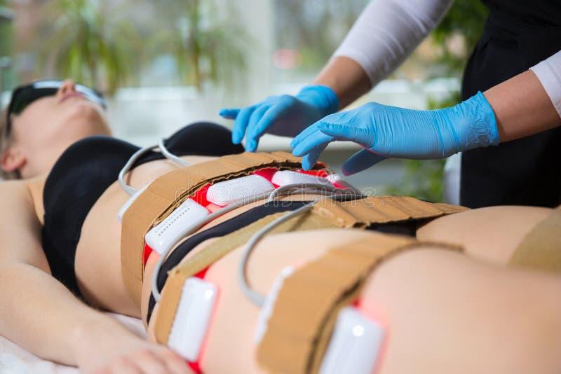 Kobiety odbiorczego odchudzającego lipo laserowa terapia w zdroju obraz royalty free