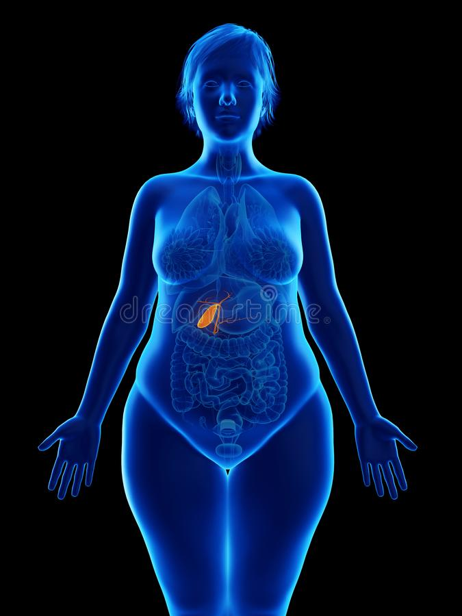 kobiety otyły gallbladder ilustracji