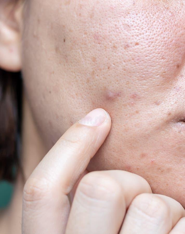 Kobiety problemayczna skóra, trądzik blizny, wazeliniarska skóra, por, ciemni punkty, zaskórnik i whitehead na twarzy, obraz stock