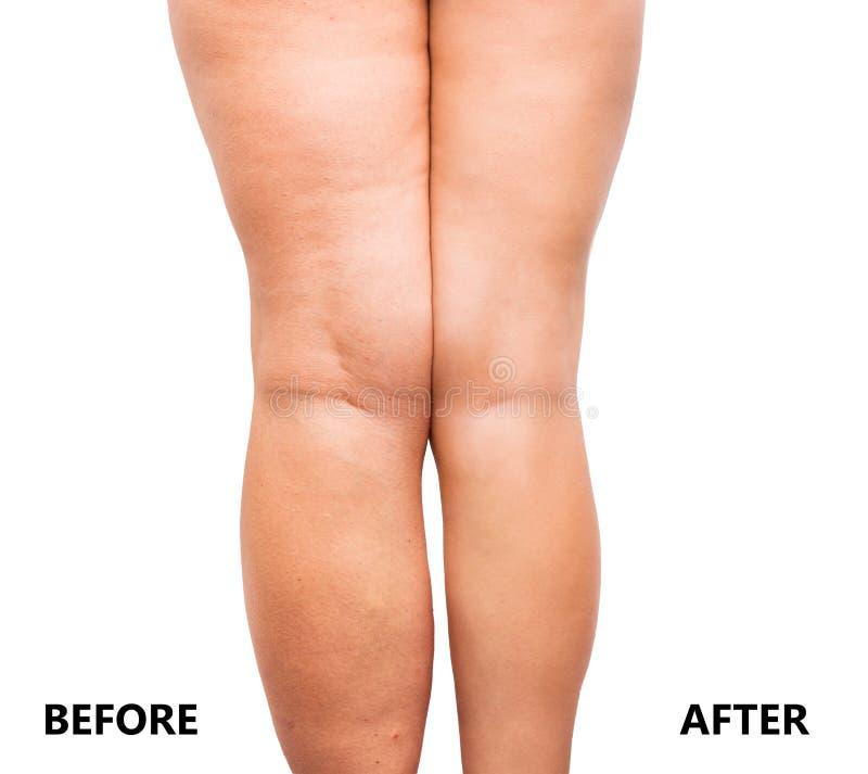 Kobiety ` s nogi przed i po ciężar stratą zdjęcie royalty free