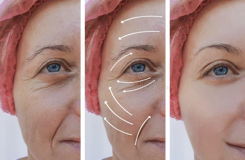 Kobiety skóry twarz marszczy korekcję przed i po procedurami, strzała obraz royalty free