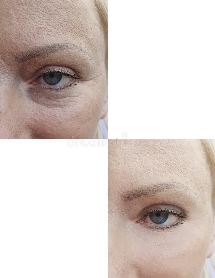 Kobiety skóry twarzy zmarszczeń kolażu kosmetologii skutka napięcia plastikowy udźwig po antiaging rewitalizacji przedtem obraz stock