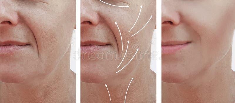 Kobiety skóry twarzy zmarszczenia wykonują starzenia się traktowania rezultatów korekcję przed i po procedurami, strzała obraz stock