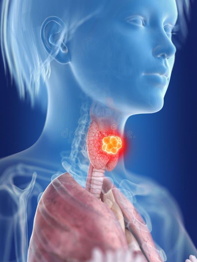 Kobiety tarczycowego gruczołu nowotwór royalty ilustracja