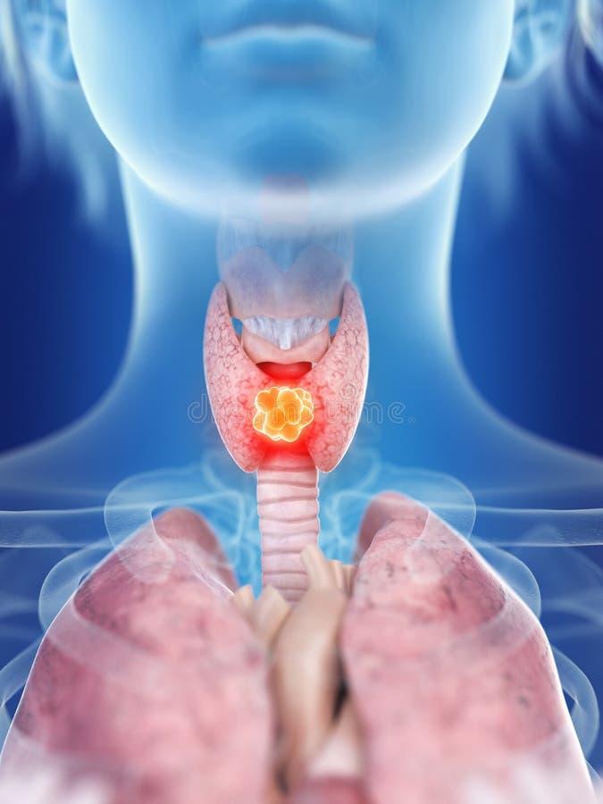 Kobiety tarczycowego gruczołu nowotwór ilustracja wektor