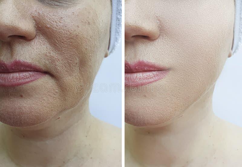 Kobiety twarz marszczy odzyskiwanie kosmetologię przed i po traktowaniem zdjęcia royalty free