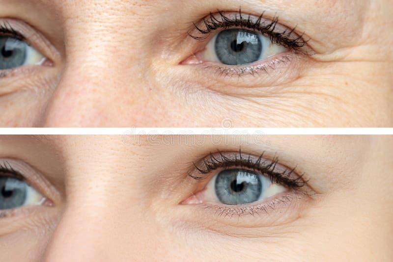 Kobiety twarz, oko marszczy przed i po traktowaniem - rezultat odmłodnieć cosmetological procedury biorevitalization, zdjęcia stock