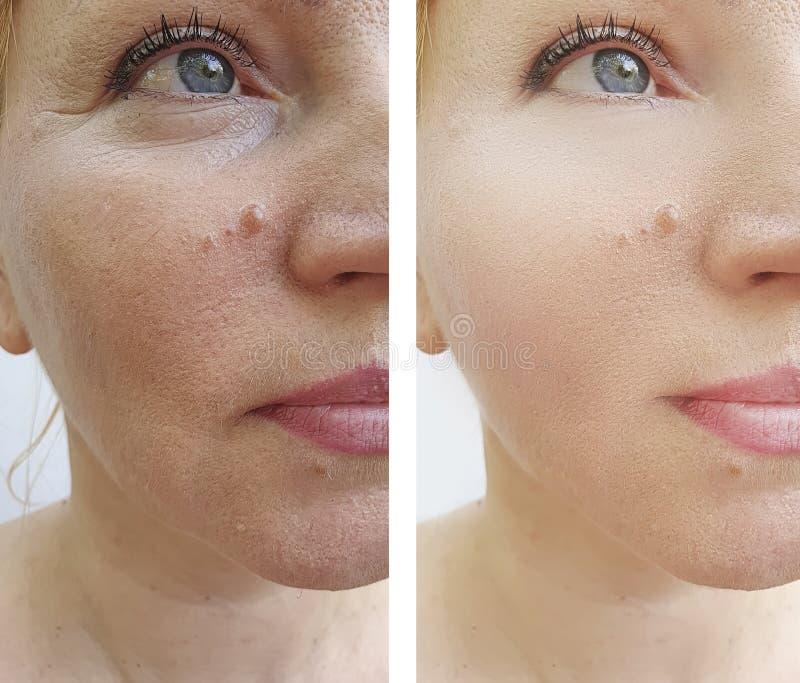 Kobiety twarzy zmarszczeń odmładzania kosmetologii rezultata odzyskiwania terapii cierpliwa korekcja przed i po traktowaniem obraz stock
