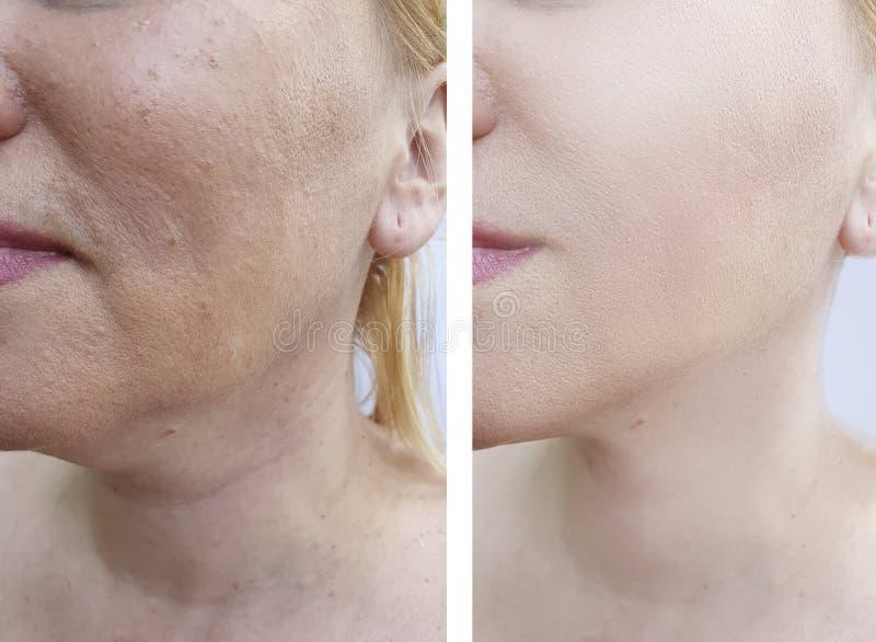 Kobiety twarzy zmarszczeń odmładzania kosmetologii rezultata odzyskiwania terapii korekcja przed i po traktowaniem zdjęcie stock