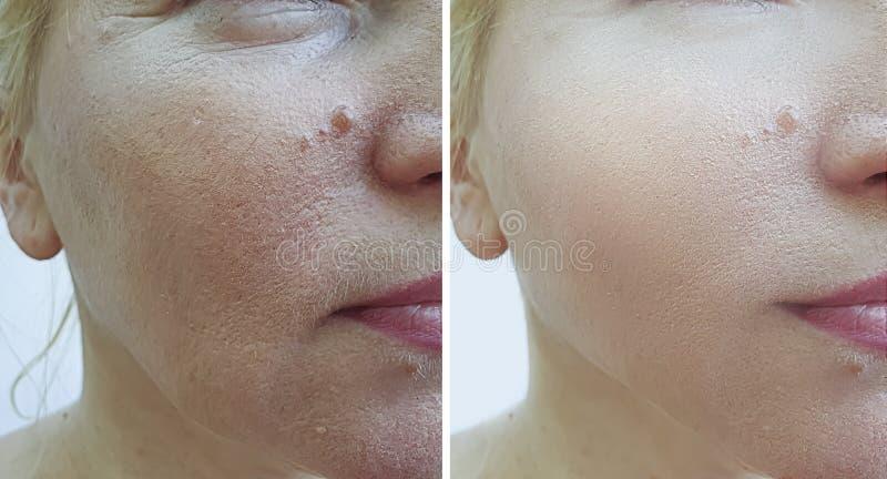 Kobiety twarzy zmarszczeń odzyskiwania udźwigu dojrzały differencecosmetology przed i po traktowaniem obraz royalty free