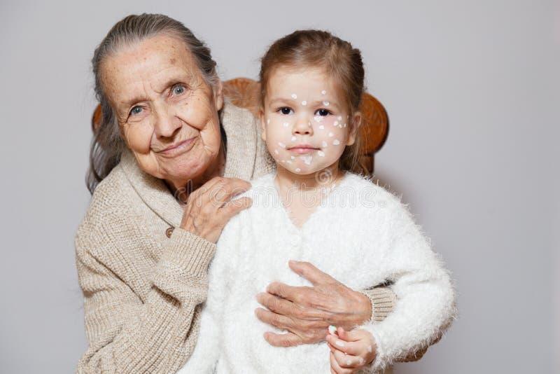Koestert de grijze langharige grootmoeder van Ð ¡ Ute in gebreide sweater kleindochter met waterpokken, witte punten, blaren op g stock afbeelding
