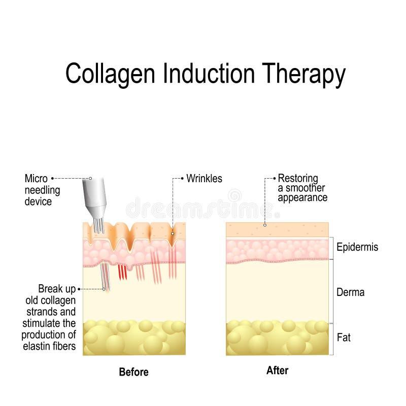Kolagen indukci terapia microneedling ilustracja wektor