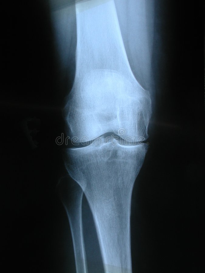 kolano obraz stock