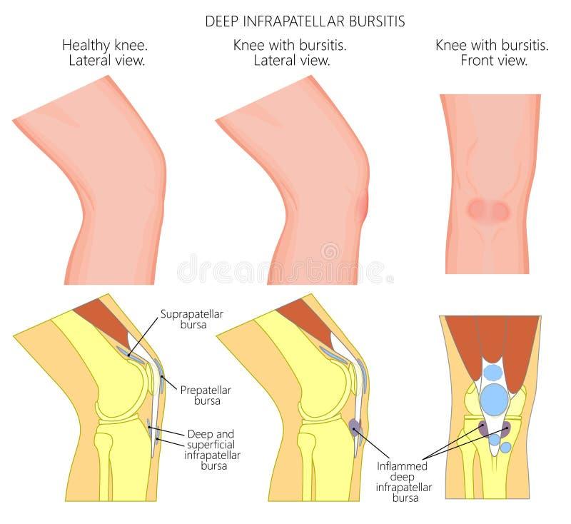 Kolanowego bursitis_Deep infrapatellar bursitis royalty ilustracja