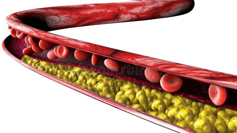 Kolesterolbildande, fett avsnitt 3d av en artär, en åder och röda blodceller, hjärta vektor illustrationer