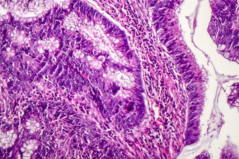 Kolonadenocarcinoma, cancer av kolonet royaltyfri foto