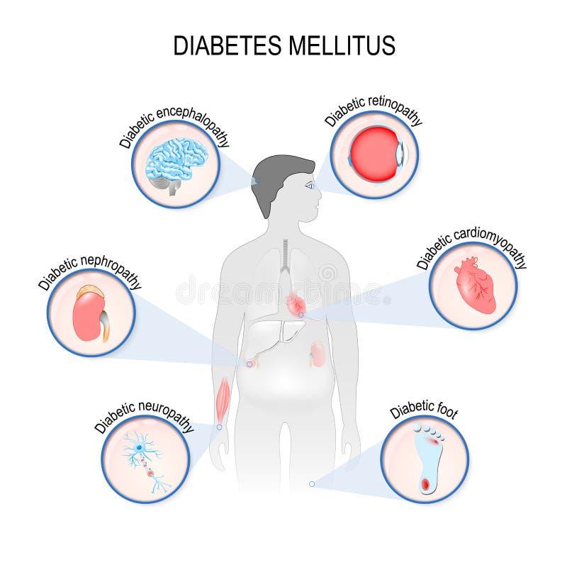 Komplikacje cukrzyce mellitus royalty ilustracja