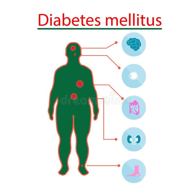 Komplikacje cukrzyce Mellitus w grubych ludziach Ilustracja w Infographic stylu o medycznym i zdrowie ilustracja wektor