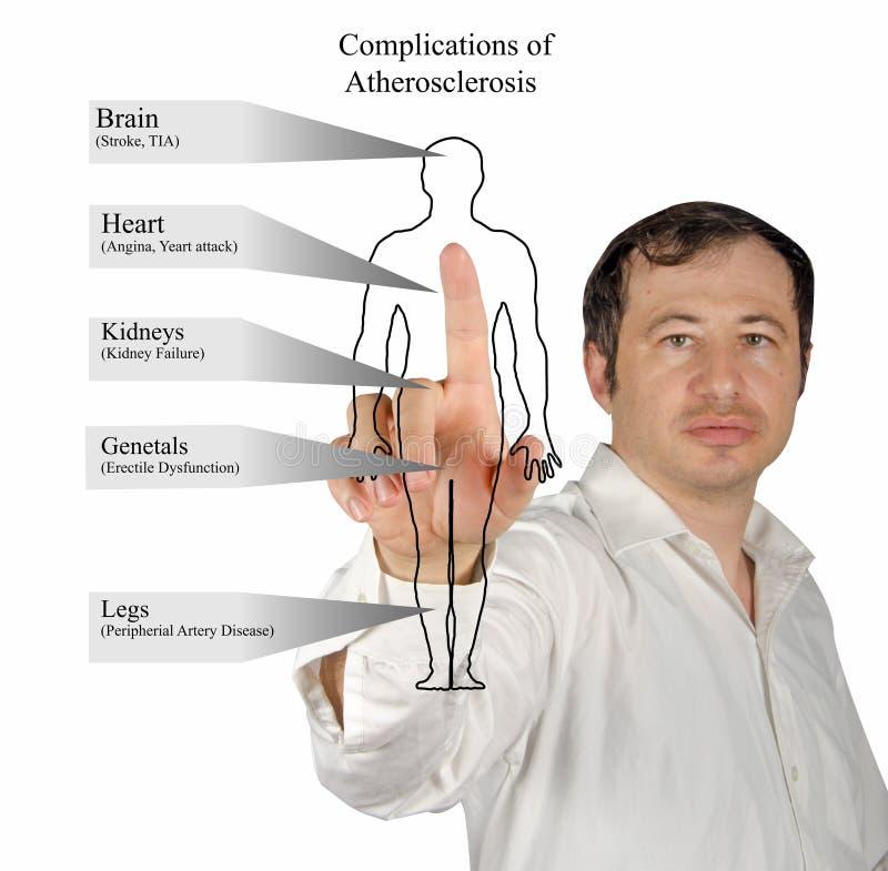 Komplikationen von Atherosclerose stockfotos