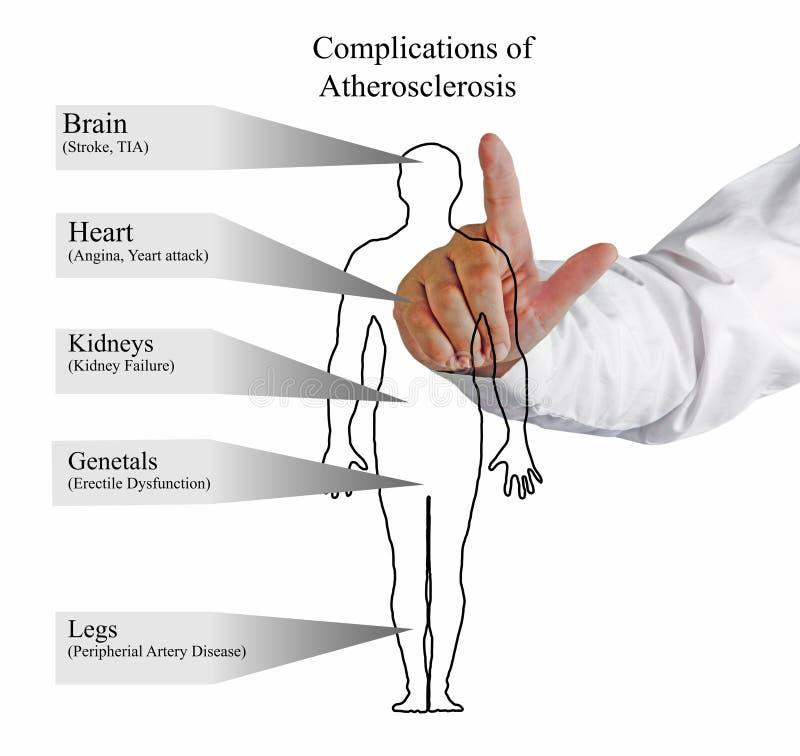 Komplikationer av Atherosclerosis royaltyfri fotografi