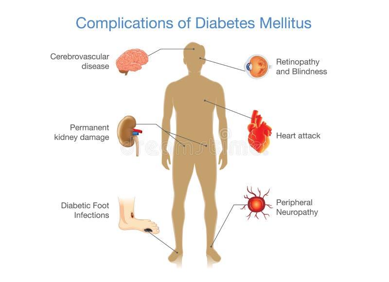 Komplikationer av mellitus sockersjuka stock illustrationer