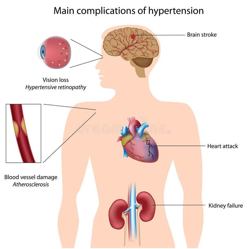 komplikationhögt blodtryck stock illustrationer
