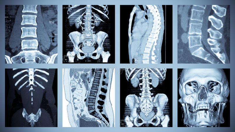 komputerowego obraz cyfrowy kośćcowa tomografia zdjęcia stock