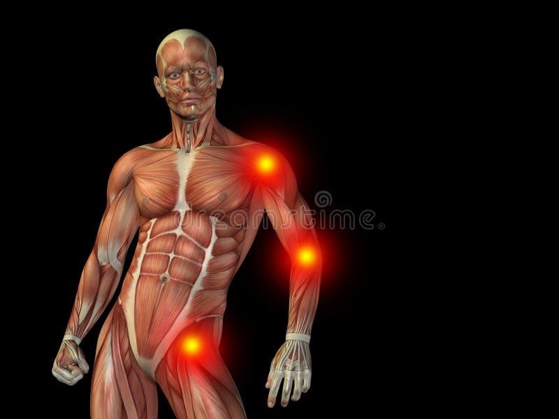 Konceptualny ciało ludzkie anatomii ból na czerni ilustracji