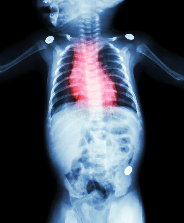 Kongenitale Herz-Krankheit, rheumatische Herz-Krankheit (Röntgenstrahlkörper des Kindes und der roten Farbe auf Herzbereich) lizenzfreie stockbilder