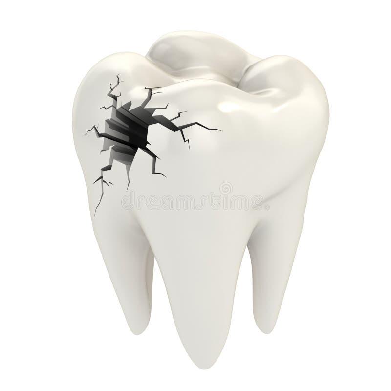 Konzept der Zahnschmerzen 3d stock abbildung